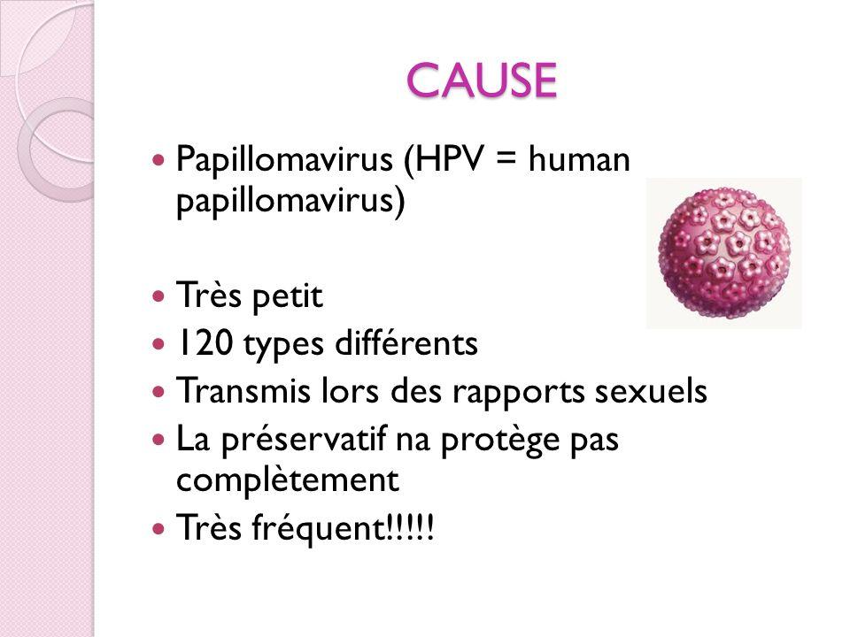CAUSE Papillomavirus (HPV = human papillomavirus) Très petit