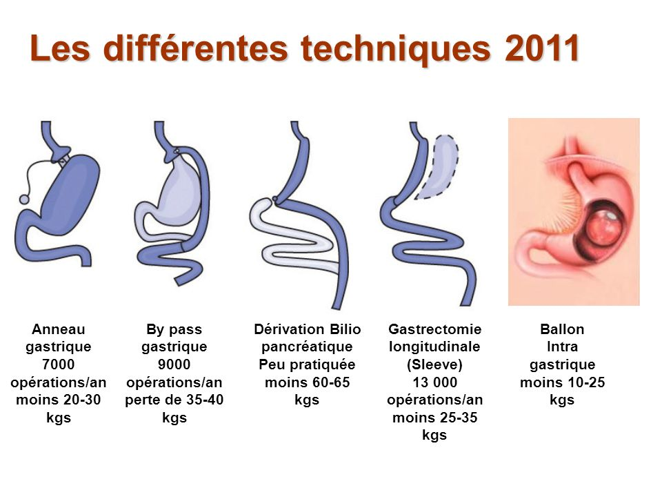 Les différentes techniques 2011
