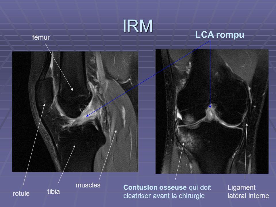 IRM LCA rompu fémur muscles