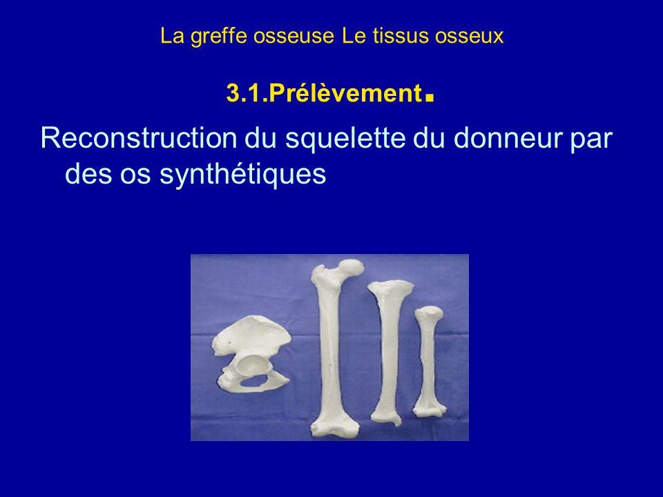 La greffe osseuse Le tissus osseux 3.1.Prélèvement.