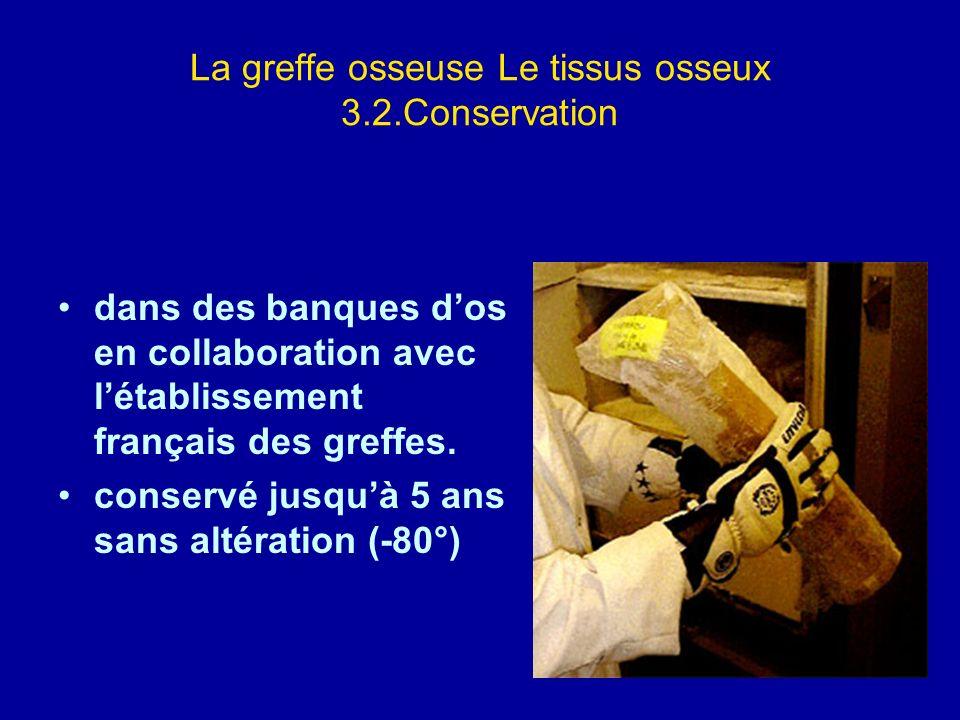 La greffe osseuse Le tissus osseux 3.2.Conservation