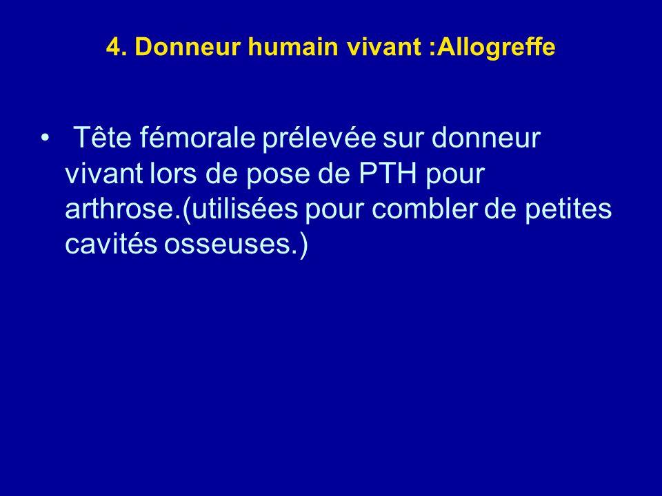 4. Donneur humain vivant :Allogreffe