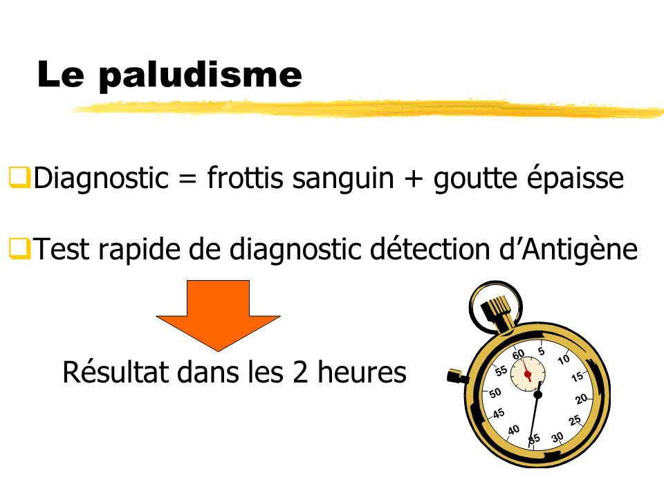 Le paludisme Diagnostic = frottis sanguin + goutte épaisse
