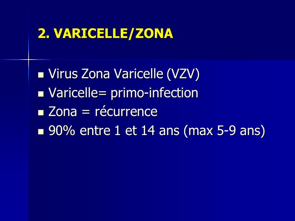 2. VARICELLE/ZONA Virus Zona Varicelle (VZV) Varicelle= primo-infection.