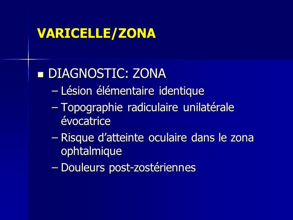 VARICELLE/ZONA DIAGNOSTIC: ZONA Lésion élémentaire identique