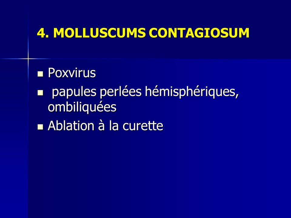 4. MOLLUSCUMS CONTAGIOSUM