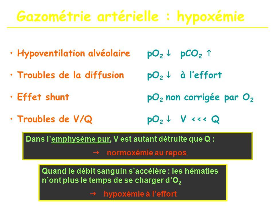 Gazométrie artérielle : hypoxémie