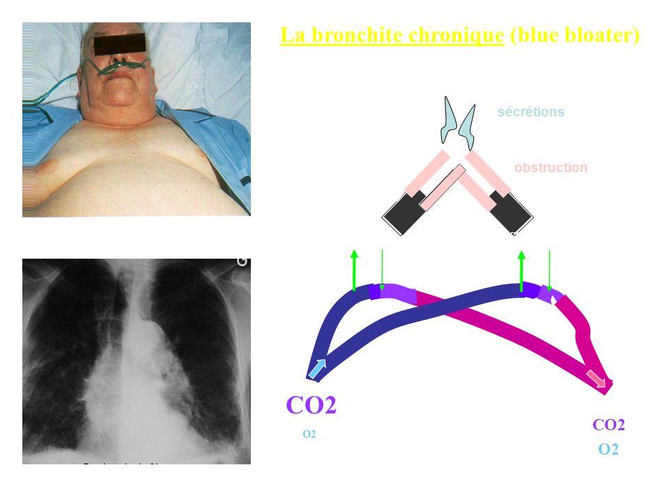 CO2 La bronchite chronique (blue bloater) CO2 CO2 CO2 O2 sécrétions