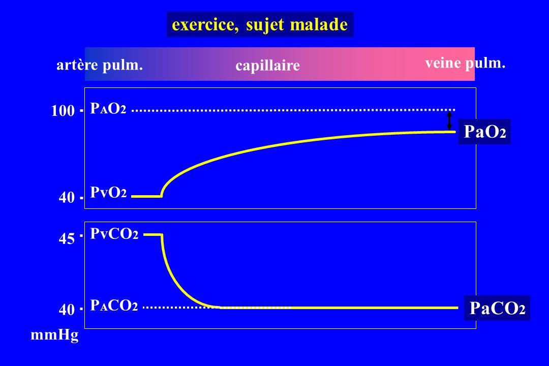 exercice, sujet malade PaO2 PaCO2 veine pulm. artère pulm. capillaire