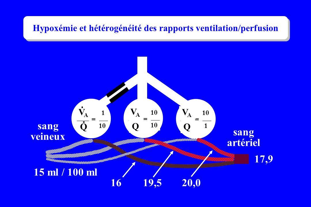 Hypoxémie et hétérogénéité des rapports ventilation/perfusion