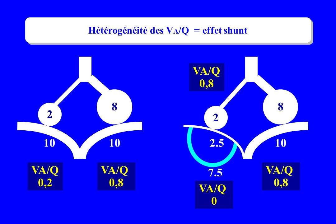 Hétérogénéité des VA/Q = effet shunt