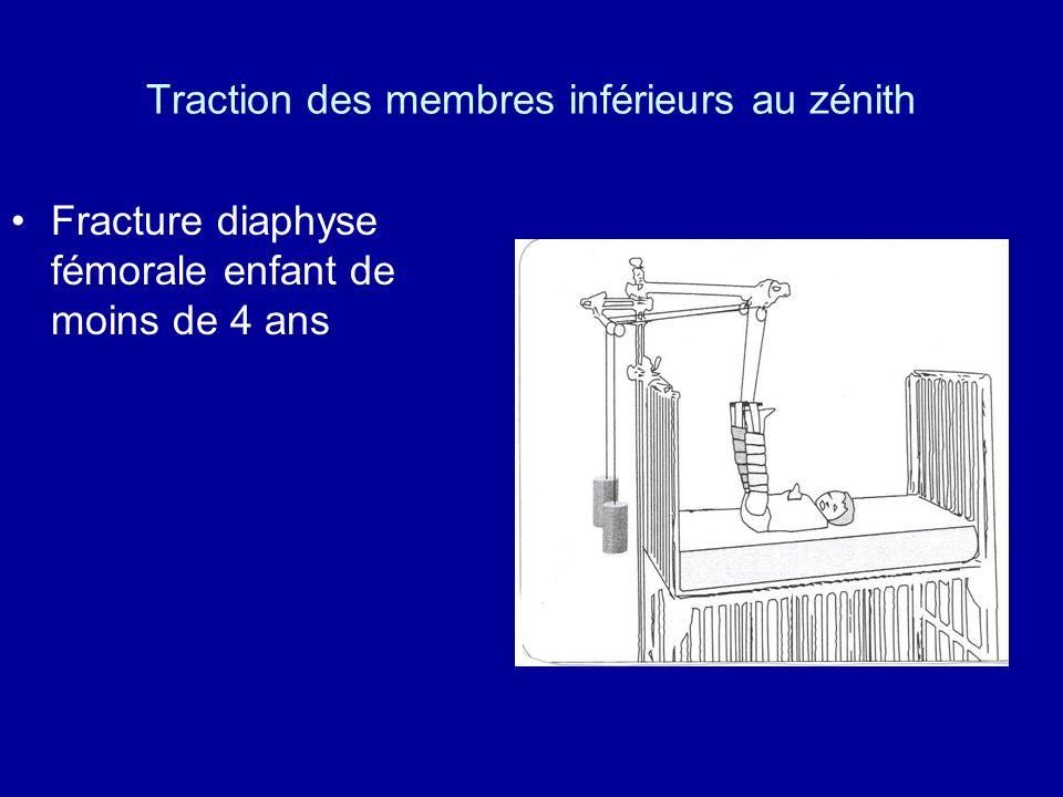 Traction des membres inférieurs au zénith