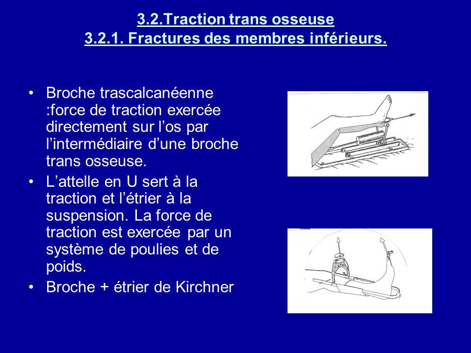 3.2.Traction trans osseuse 3.2.1. Fractures des membres inférieurs.