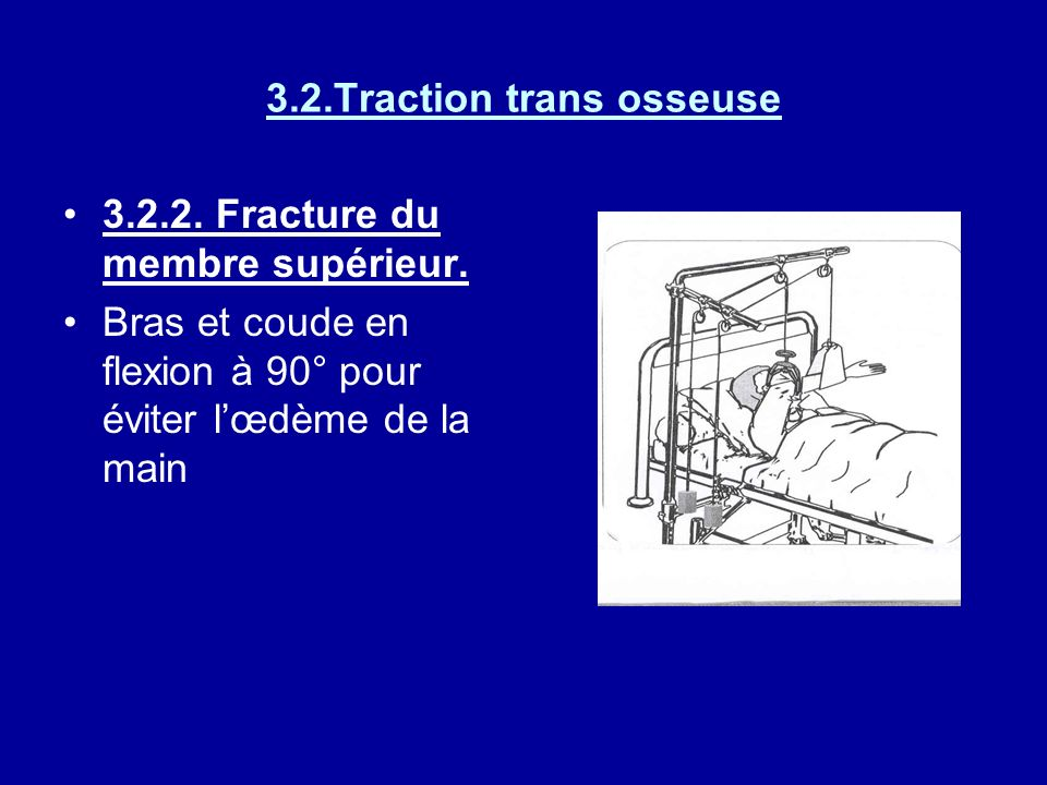 3.2.Traction trans osseuse