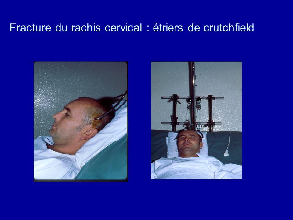 Fracture du rachis cervical : étriers de crutchfield