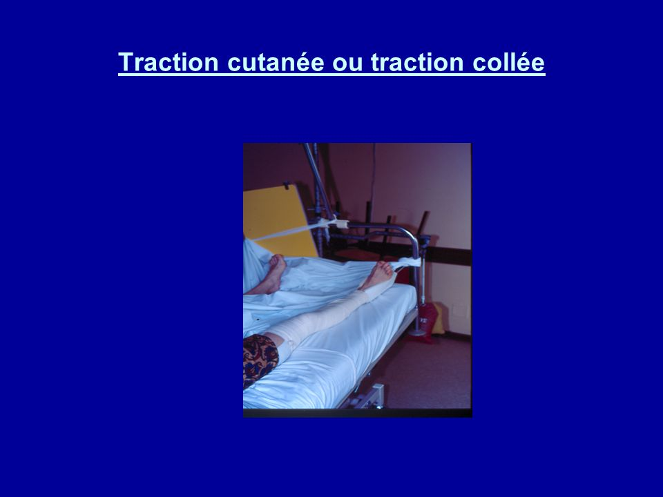 Traction cutanée ou traction collée