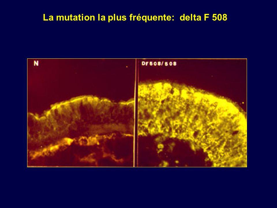 La mutation la plus fréquente: delta F 508