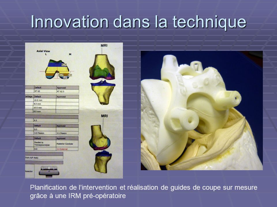 Innovation dans la technique