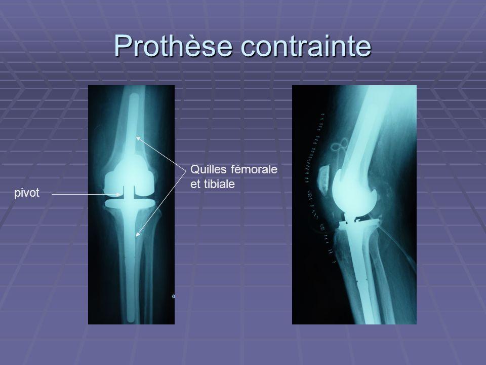 Prothèse contrainte Quilles fémorale et tibiale pivot