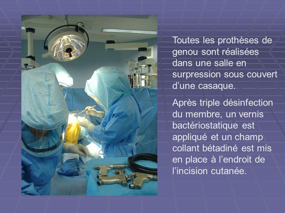 Toutes les prothèses de genou sont réalisées dans une salle en surpression sous couvert d'une casaque.