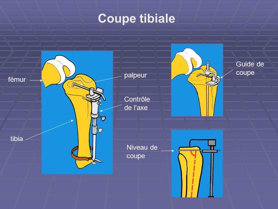 Coupe tibiale Guide de coupe palpeur fémur Contrôle de l'axe tibia