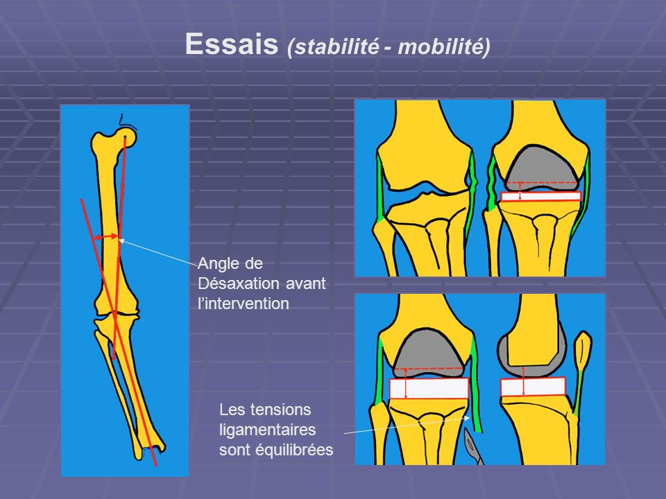 Essais (stabilité - mobilité)