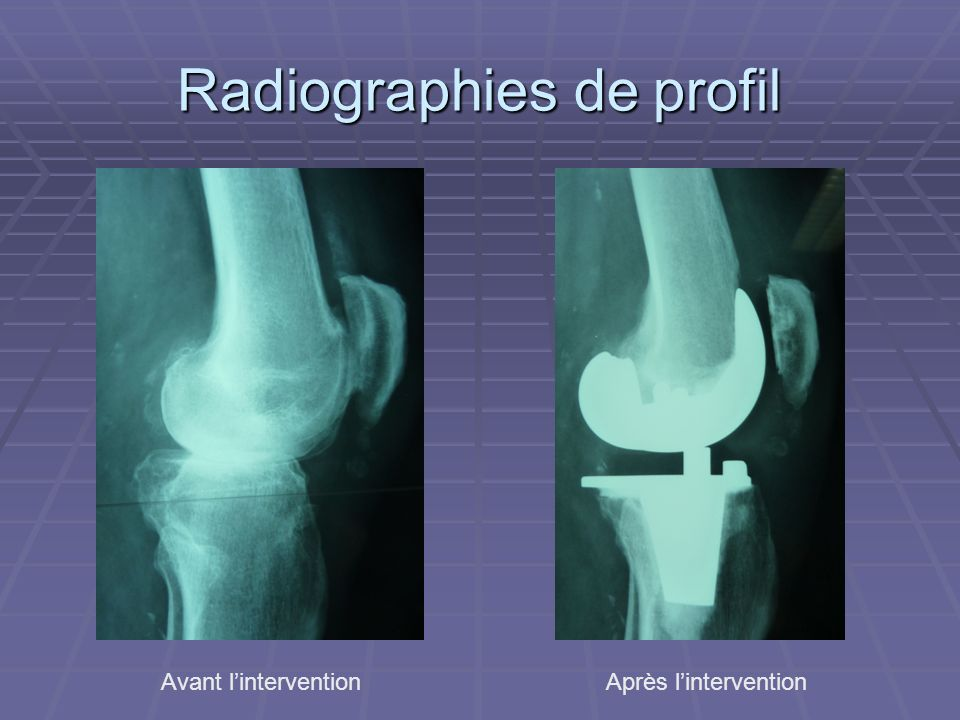 Radiographies de profil