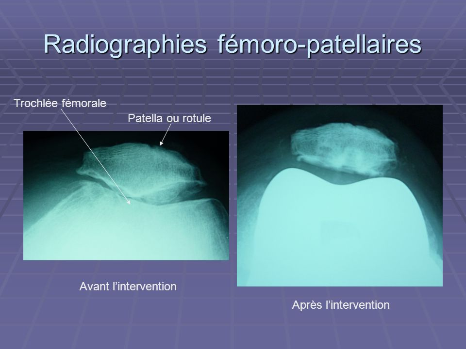 Radiographies fémoro-patellaires