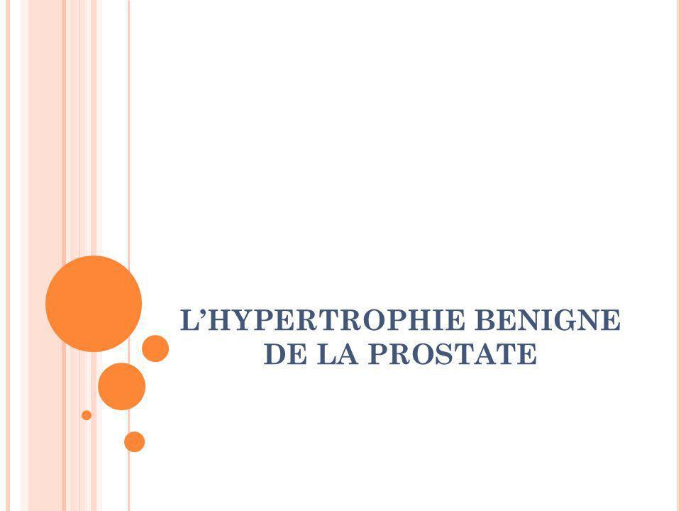 L'HYPERTROPHIE BENIGNE DE LA PROSTATE
