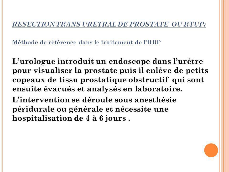 RESECTION TRANS URETRAL DE PROSTATE OU RTUP: