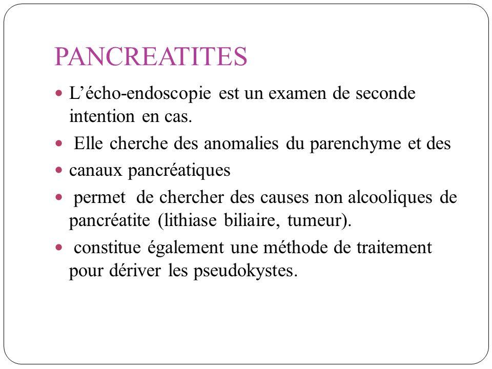 PANCREATITES L'écho-endoscopie est un examen de seconde intention en cas. Elle cherche des anomalies du parenchyme et des.