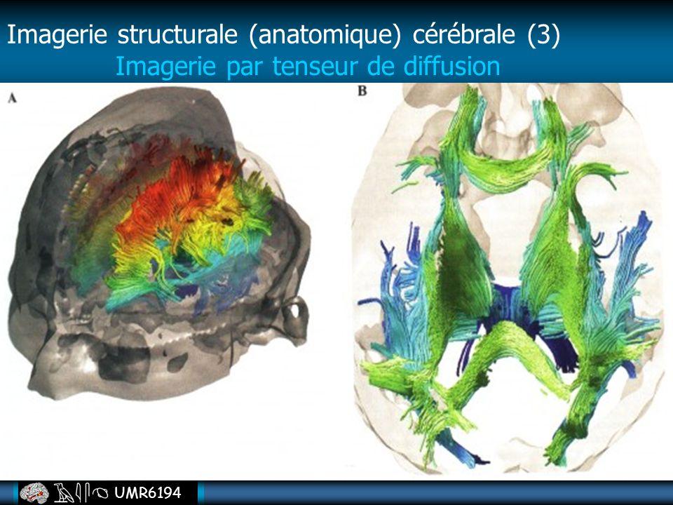 Imagerie structurale (anatomique) cérébrale (3)