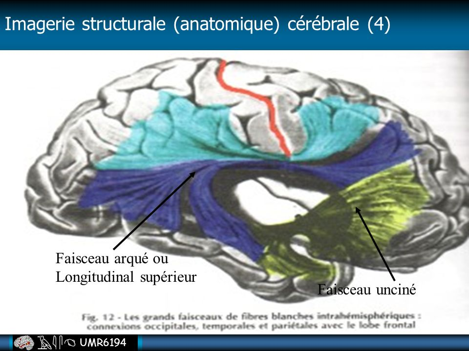 Imagerie structurale (anatomique) cérébrale (4)