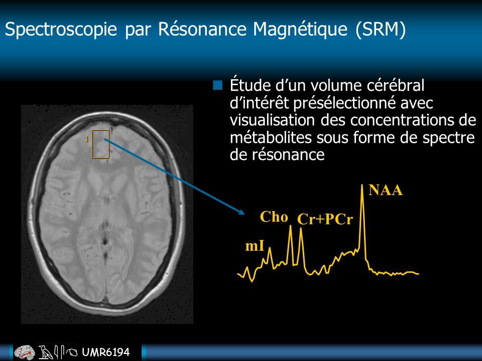 Spectroscopie par Résonance Magnétique (SRM)