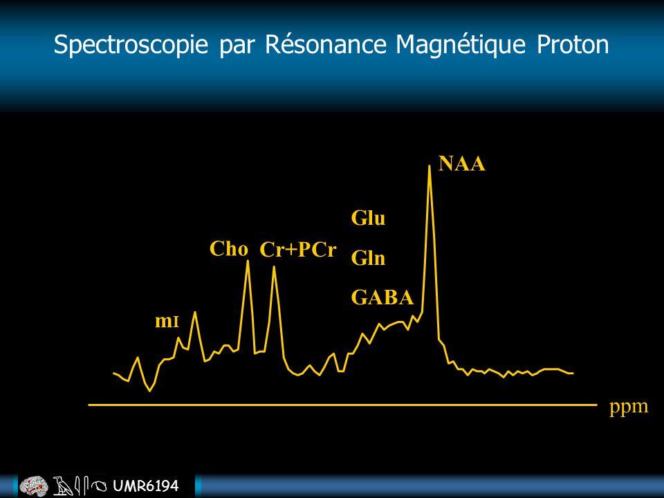 Spectroscopie par Résonance Magnétique Proton