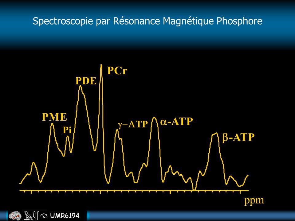 Spectroscopie par Résonance Magnétique Phosphore