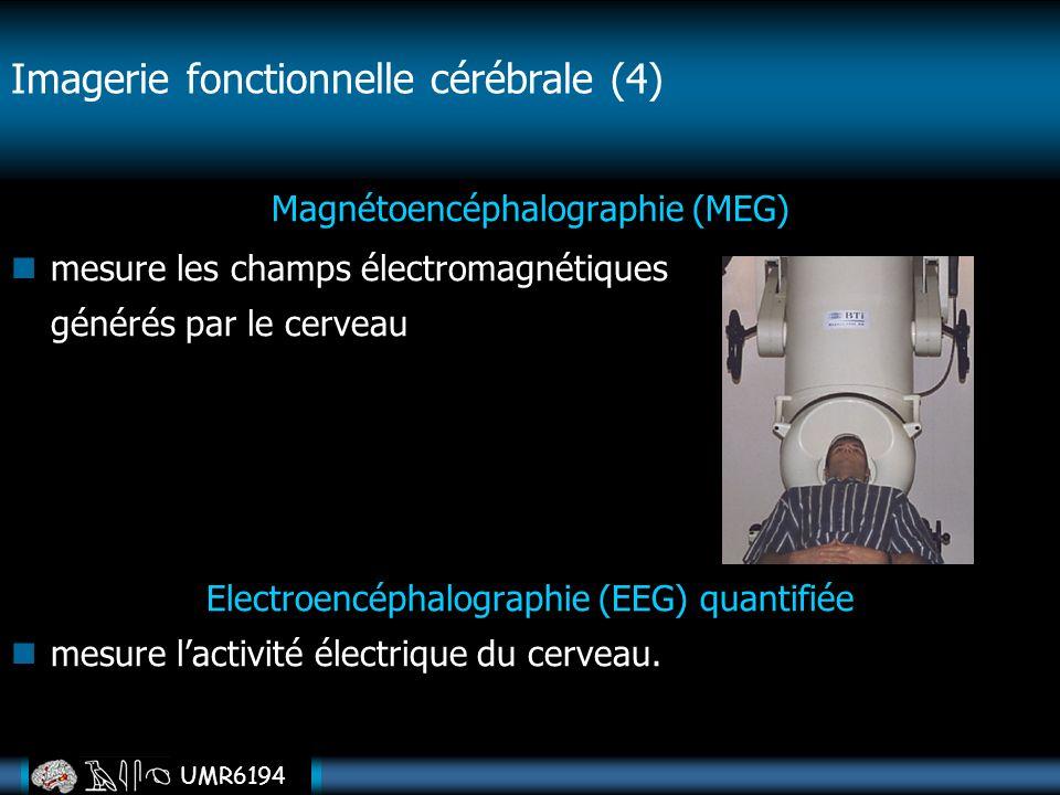 Imagerie fonctionnelle cérébrale (4)