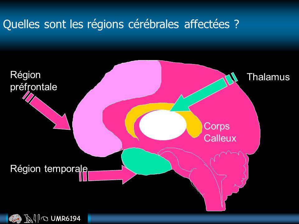 Quelles sont les régions cérébrales affectées
