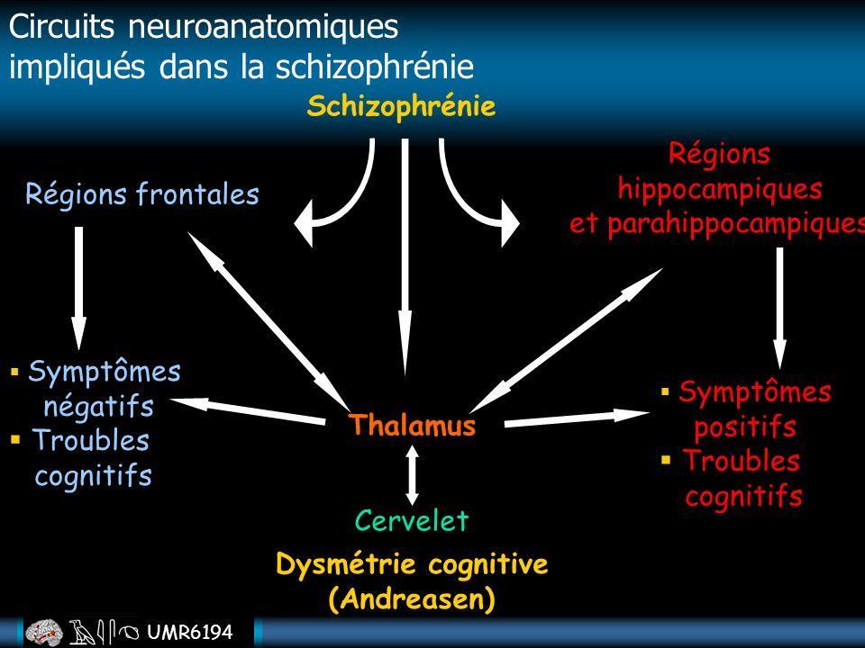 Dysmétrie cognitive (Andreasen)