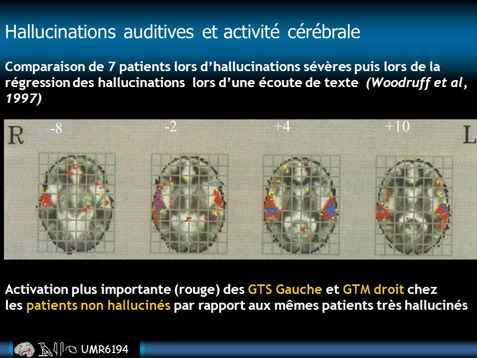 Hallucinations auditives et activité cérébrale