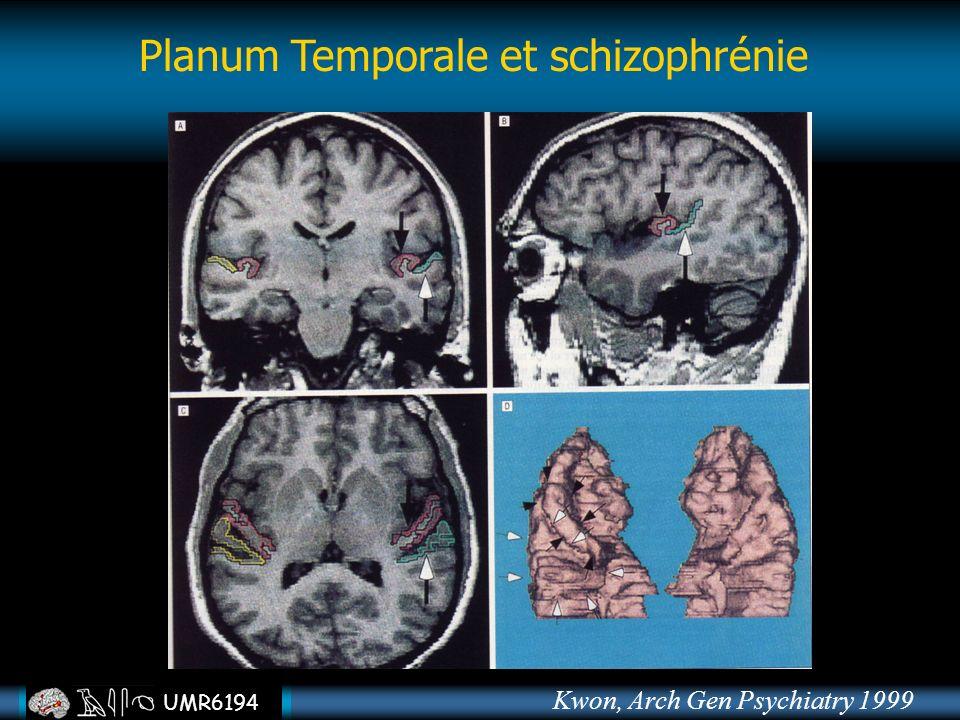 Planum Temporale et schizophrénie