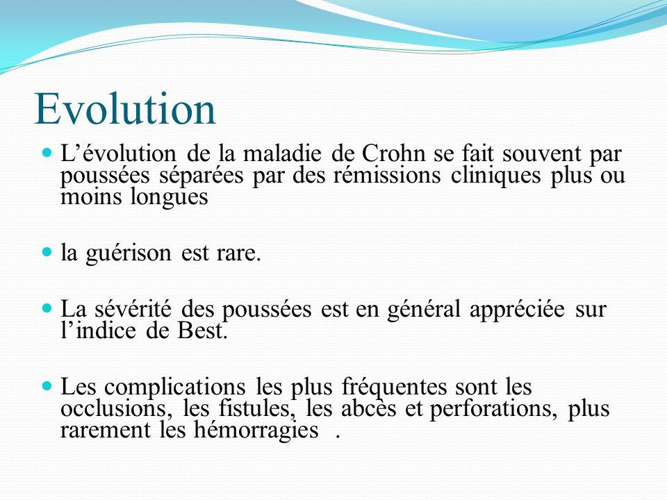 Evolution L'évolution de la maladie de Crohn se fait souvent par poussées séparées par des rémissions cliniques plus ou moins longues.