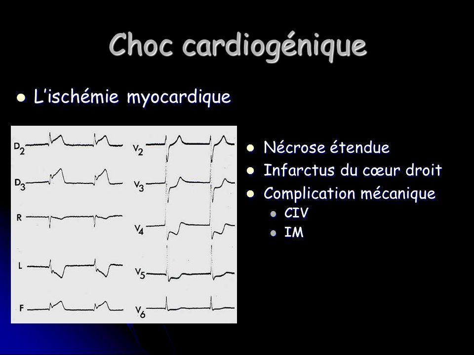 Choc cardiogénique L'ischémie myocardique Nécrose étendue
