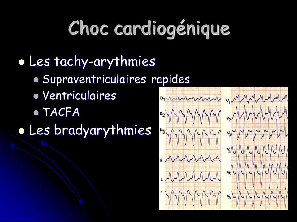 Choc cardiogénique Les tachy-arythmies Les bradyarythmies