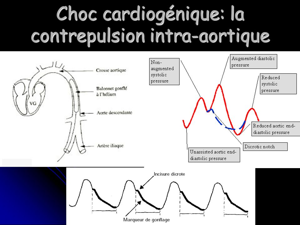 Choc cardiogénique: la contrepulsion intra-aortique