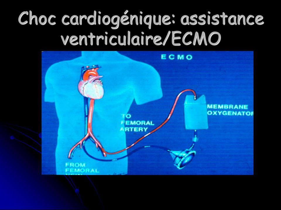 Choc cardiogénique: assistance ventriculaire/ECMO