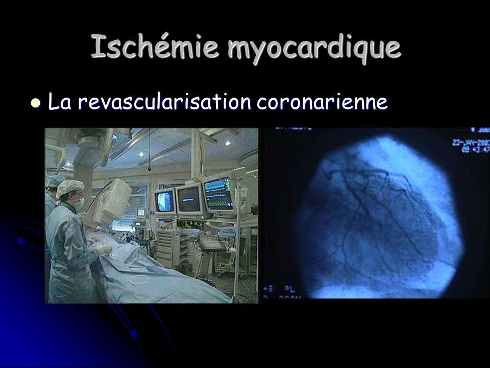 Ischémie myocardique La revascularisation coronarienne