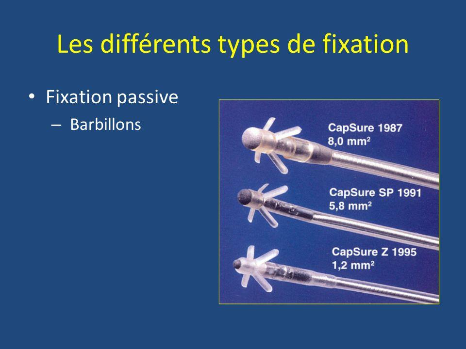 Les différents types de fixation
