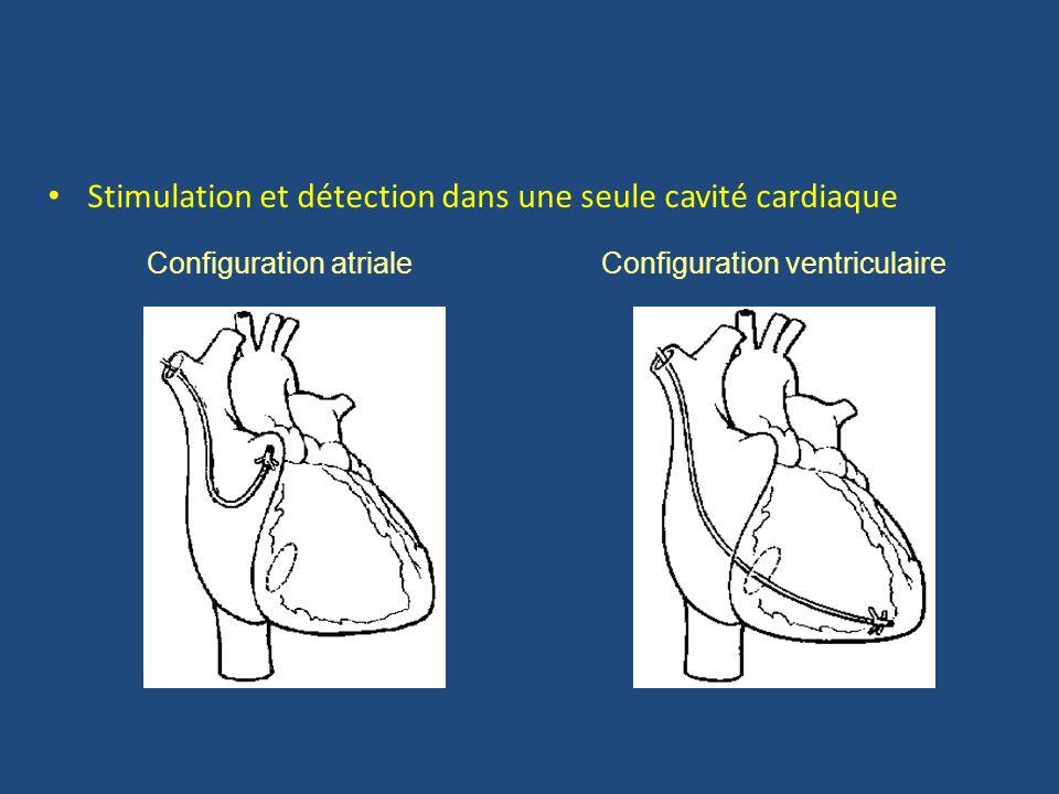 Stimulation et détection dans une seule cavité cardiaque