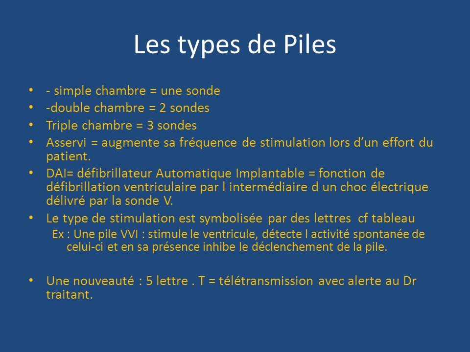 Les types de Piles - simple chambre = une sonde